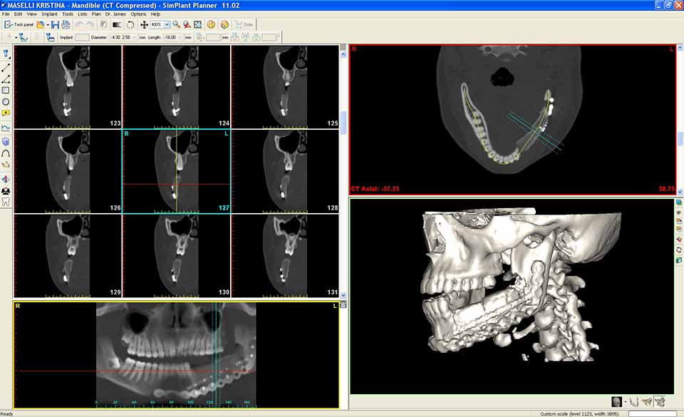 Clinical X-ray of Jaw after treatment