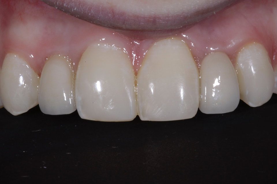 After single tooth implant
