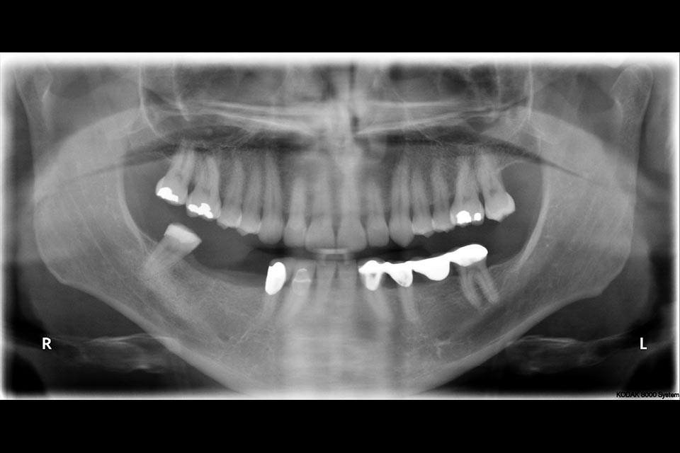Patient's mouth with multiple teeth missing
