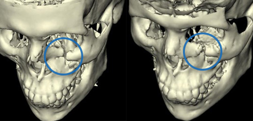 3D X-ray of orbital fracture of a patient at New York Oral, Maxillofacial, and Implant Surgery.