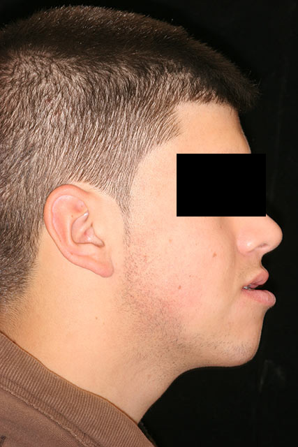 Before image of patient's side face