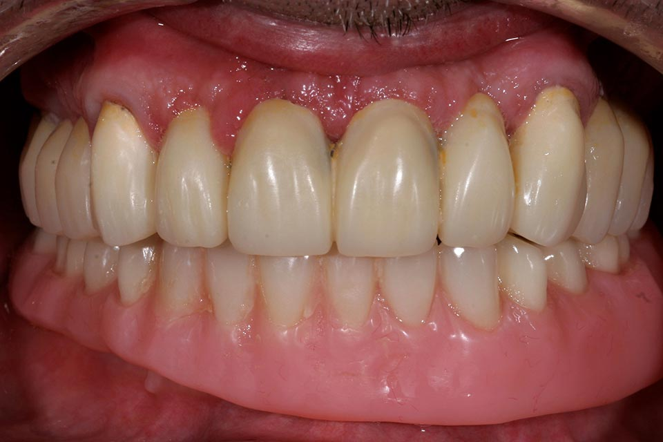 After smile of implant supported dntures