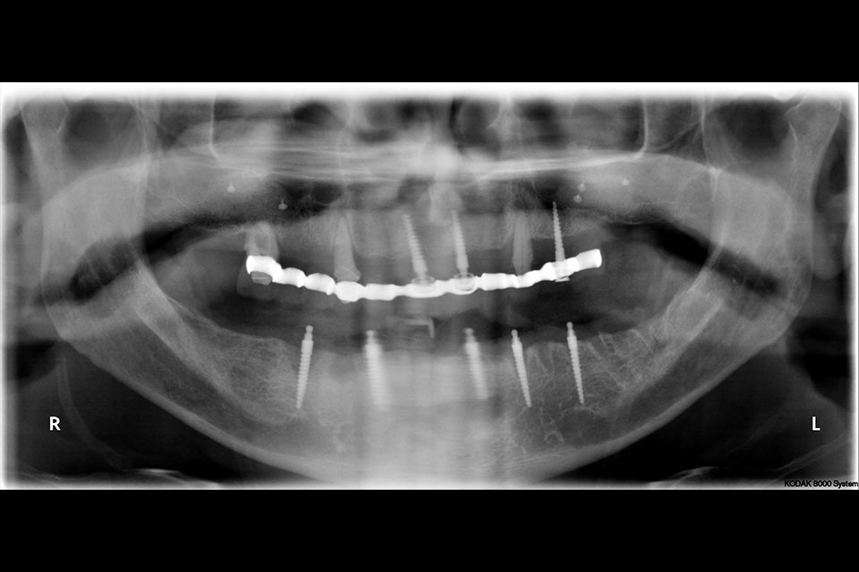 x-ray of patient's jaw