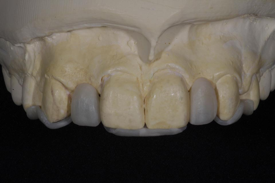 Single tooth implant planning